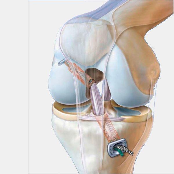 Dispositivos para rodilla